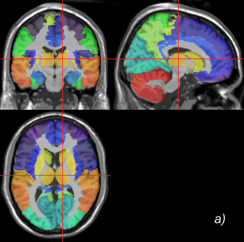 Mri brain anatomy atlas
