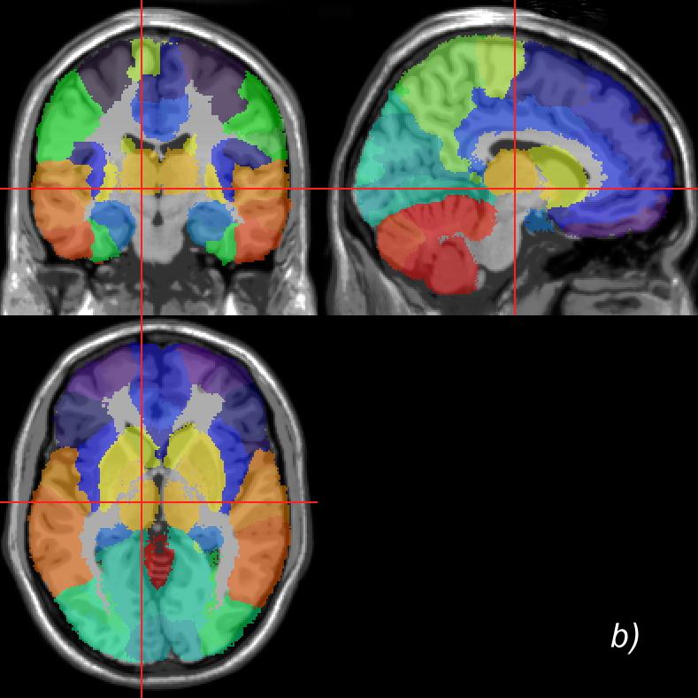 Ibaspmindividual Brain Atlases Using Statistical Parametric Mapping